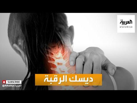 بالفيديو تعرّف على أعراض ديسك الرقبة